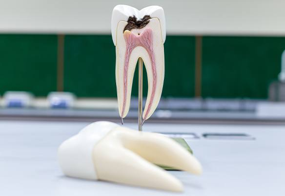 Model of decayed tooth