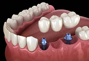 Animation of dental implant components