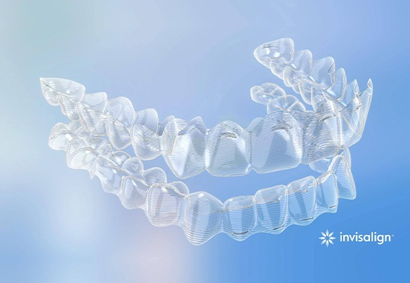 Clear aligner tray