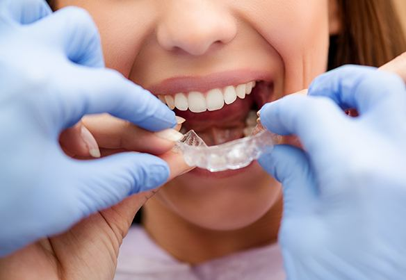 Dentist placing oral appliance