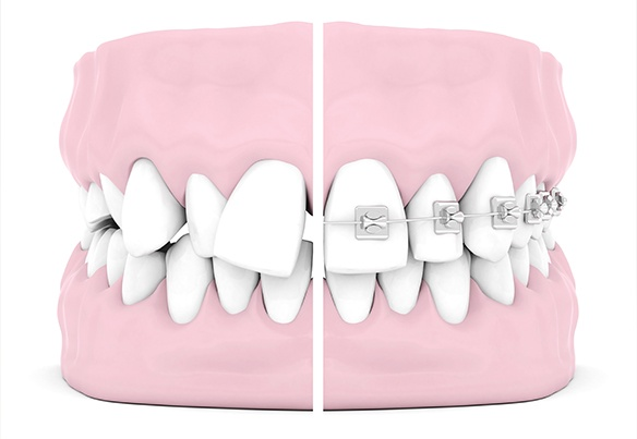 Animation of teeth with and without braces